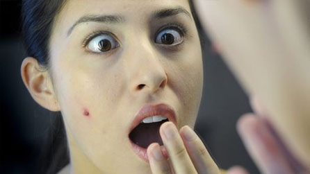 How to Prevent Acne scar Treatments
