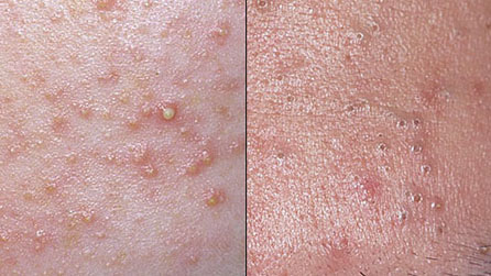 Severe Acne scar Treatments