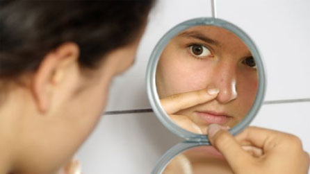 What Acne Scar Treatments do Professionals Recommend?